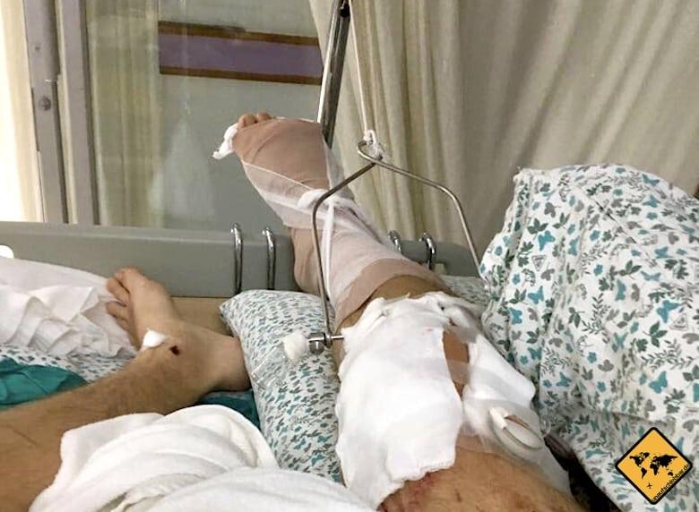 Verletztes Knie nach unserem Rollerunfall
