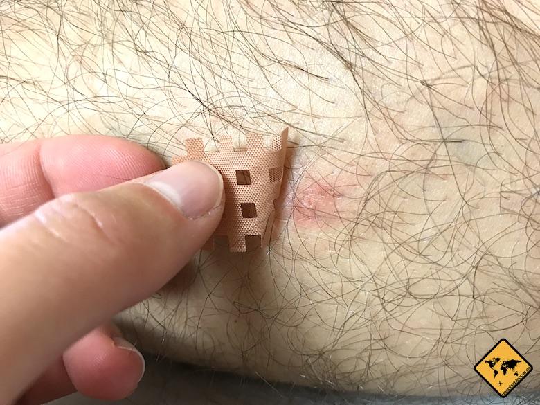 Mückenpflaster aufkleben