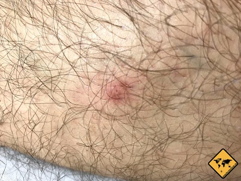 Mückenstich ohne Pflaster